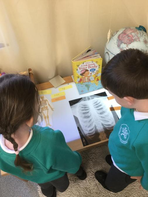 Exploring an x-ray at the light table - Which bone could this be?