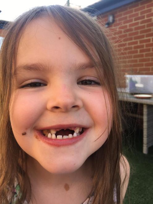 Loosing teeth...a common year 1 problem !