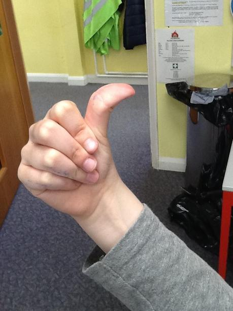 Hichhiker's Thumb