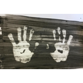 X-ray hand prints