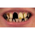 Mrs File's decaying teeth.
