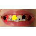 Nina's decaying teeth.