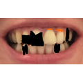 Shane manipulated an image of Mrs File's teeth.