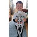 Finnley W's Skeleton