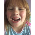 Olivia lost a tooth.