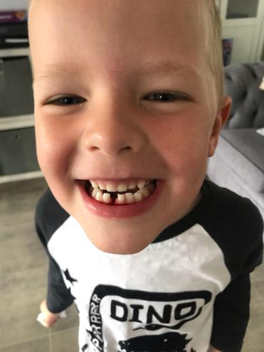 Zac lost his first tooth!! 🦷