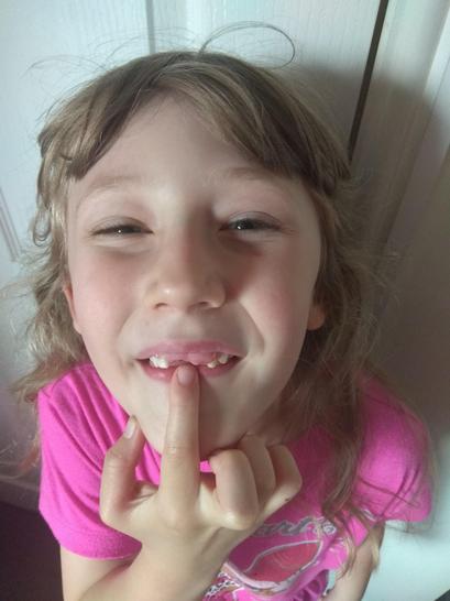 Evie has lost TWO teeth! 🦷🦷