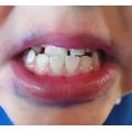 After - shiny teeth!