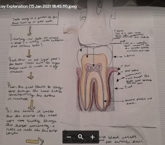 Paige - Explanation of Tooth Decay