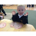 Counting spots on potatoes