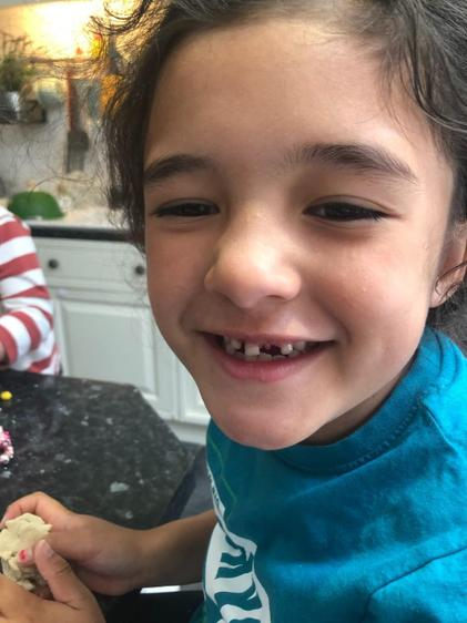 Dahlia lost her front tooth ⭐️