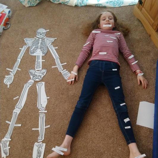 Spot the bones
