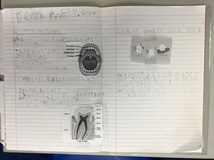 Marc's writing about teeth