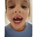 Elisabeth lost another tooth!