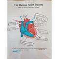 Holly's Heart Diagram