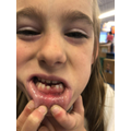 Isabelle lost her first tooth!