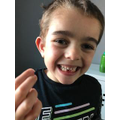 Kyan has lost his 2nd tooth!
