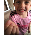 Kyan's first tooth fell out