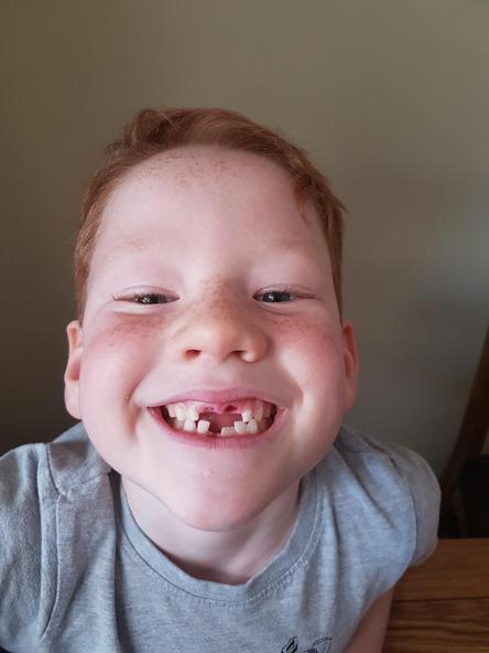 Where have all those teeth gone?
