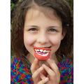 Isla's teeth model