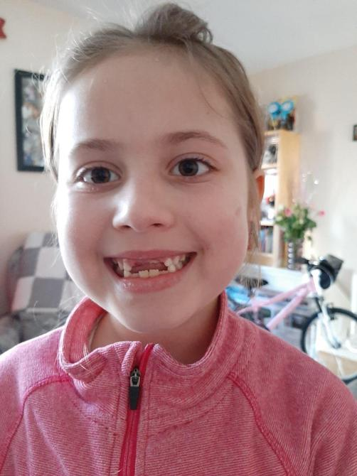 Another lost tooth!