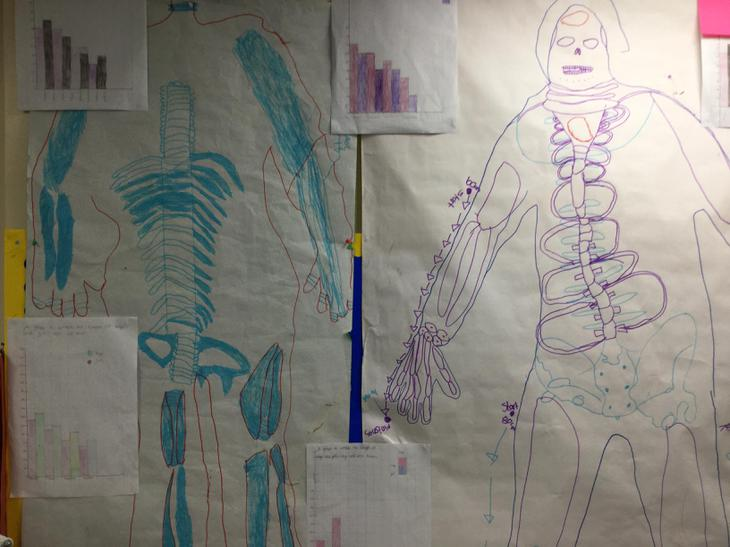 We investigated and found that the bones...
