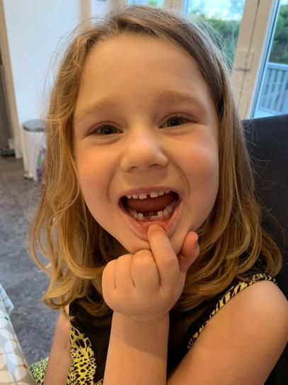 G has had a visit from The Tooth Fairy!